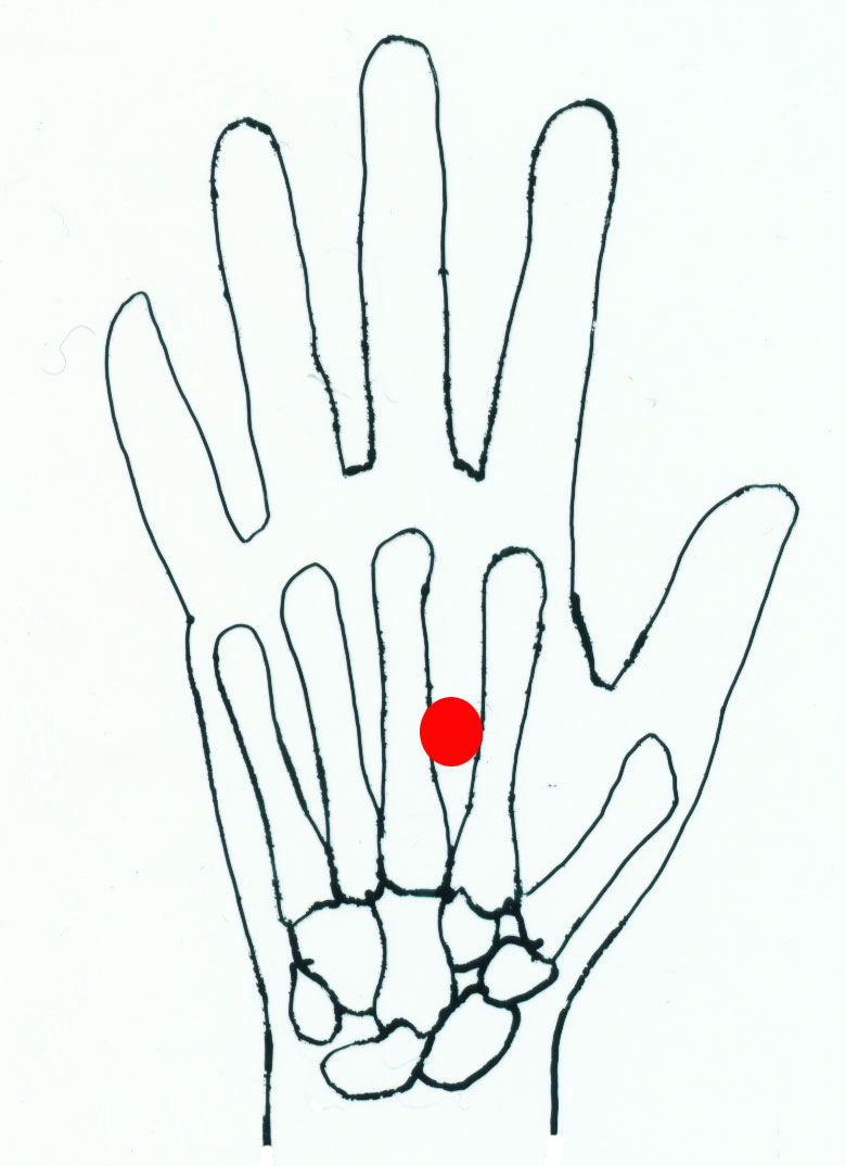 lao gong - acupuncture point picture